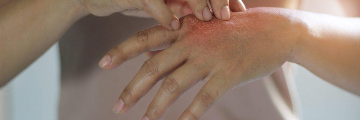 Woman scratching hand / eczema