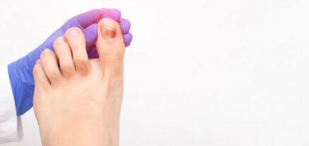 Chilblains - Symptoms, Diagnosis and Treatment | 24-7Medcare